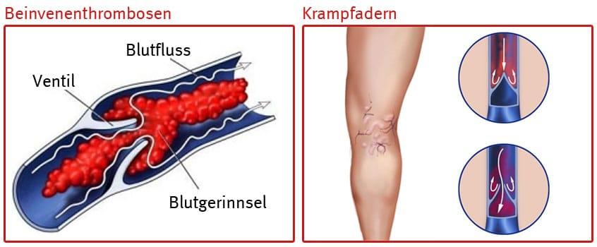 Beinvenenthrombosen-und-Krampfadern