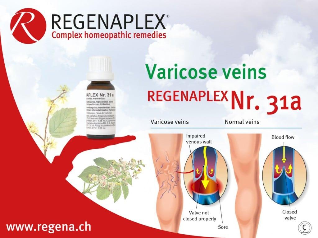 REGENAPLEX Nr 31a - Varicose veins