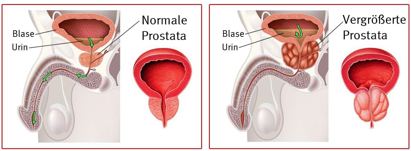 Prostatahypertrophie